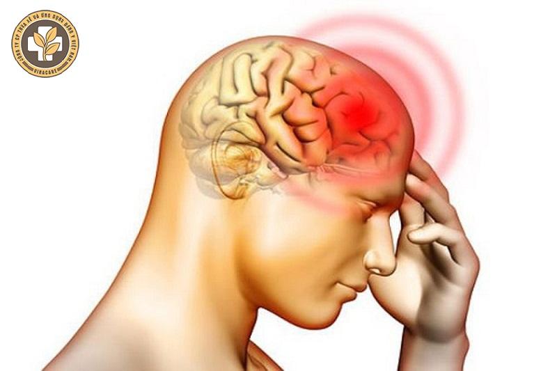 Đau đầu ảnh hưởng đến cấu trúc não và dễ gây biến chứng