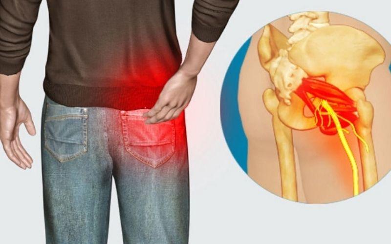 Vùng thắt lưng và chân là những vị trí đau nhức nhiều nhất