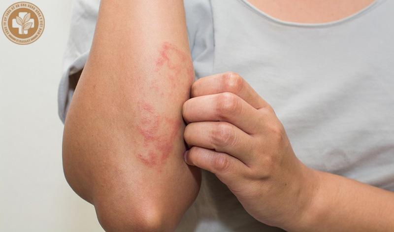 Viêm da cơ địa là một bệnh lý da liễu