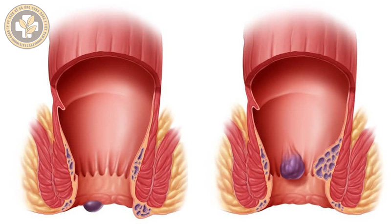 Phân biệt hình ảnh trĩ nội và trĩ ngoại