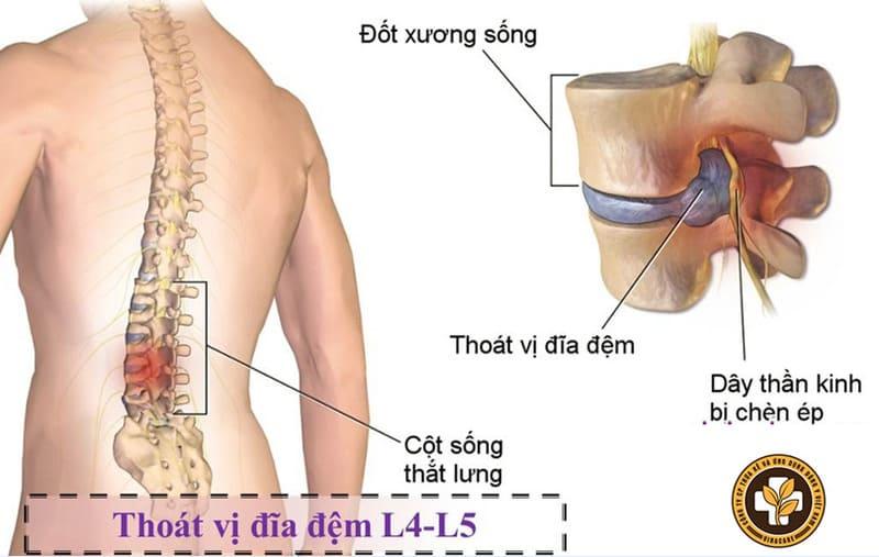 Thoát vị ở đĩa đệm cột sống thắt lưng L4 L5