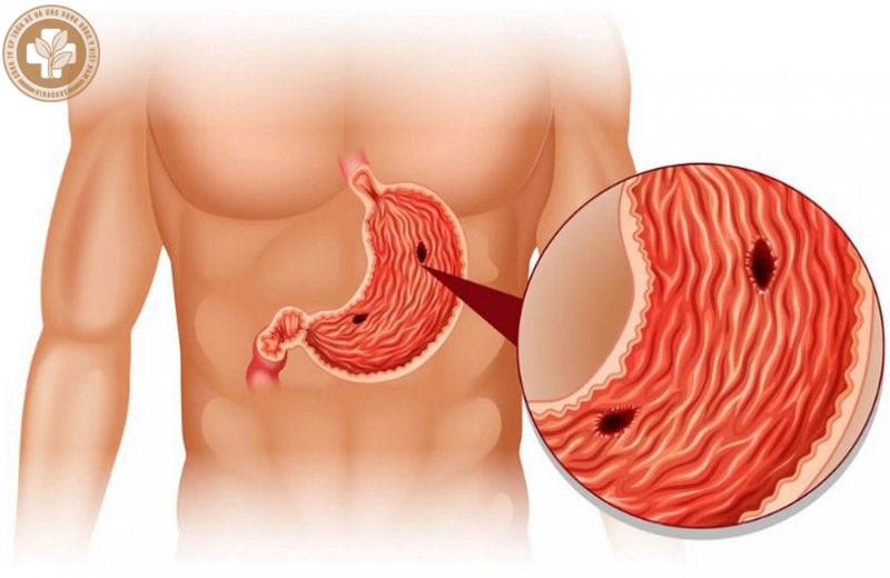 Tình trạng thủng dạ dày
