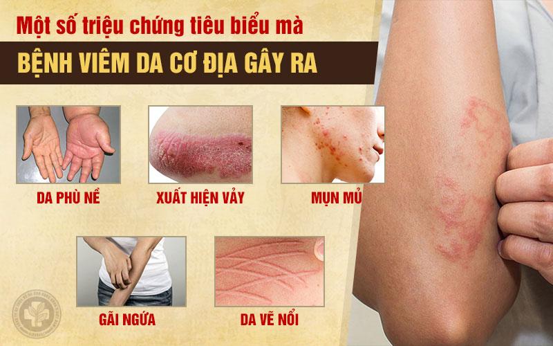 Triệu chứng viêm da cơ địa tiêu biểu