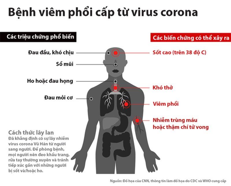 Viêm phổi cấp là bệnh điển hình do virus Corona gây ra