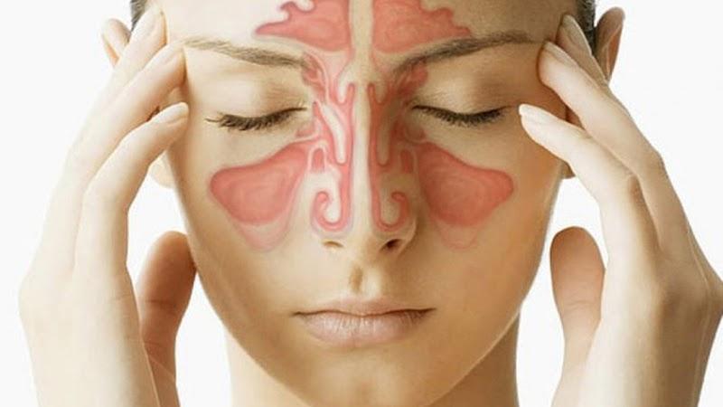 Viêm đa xoang gây nhiều đau đớn cho bệnh nhân
