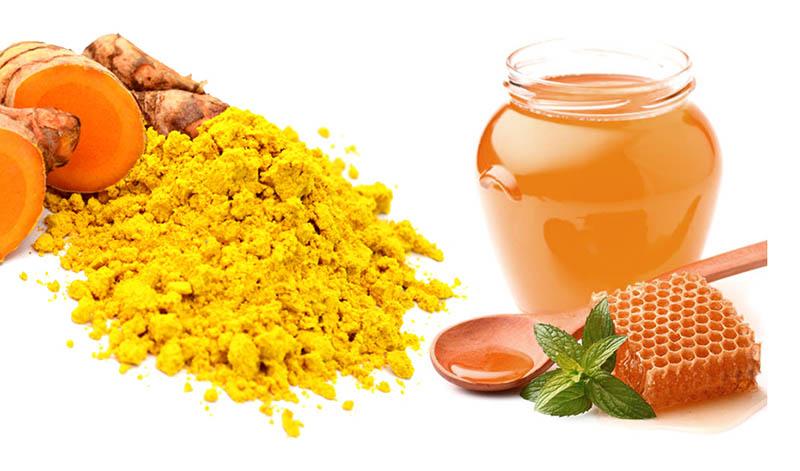 Nghệ có tính sát khuẩn, kháng viêm cao, rất hiệu quả khi kết hợp cùng mật ong chữa viêm họng