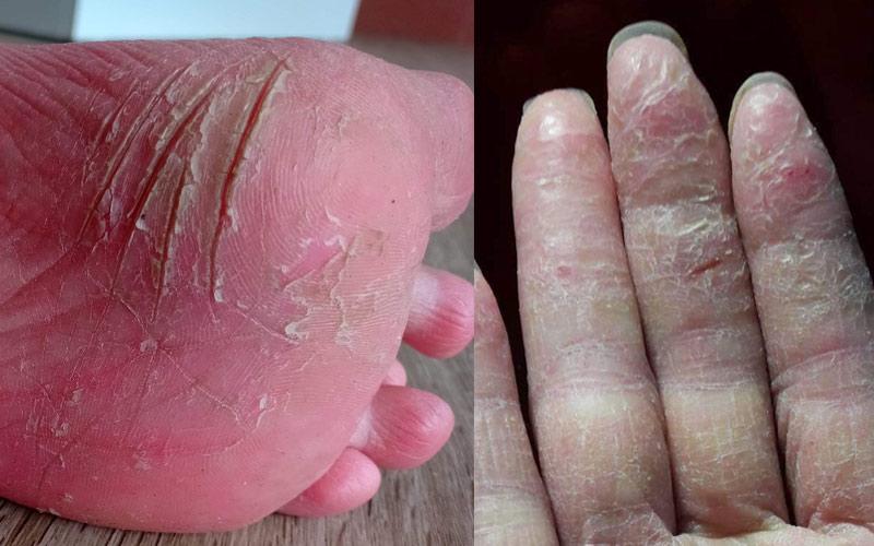 Tình trạng da tay và chân của Hạnh sau sinh