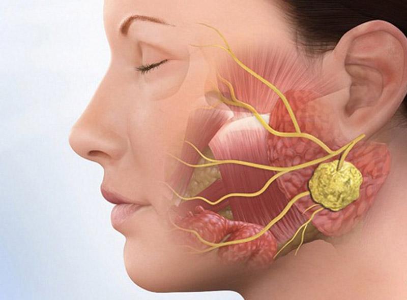 Viêm họng mãn tính có thể gây ung thư vòm họng