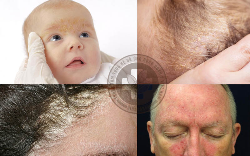 Hình ảnh viêm da tiết bã ở người lớn và trẻ em