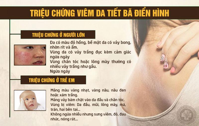 Triệu chứng nhận biết viêm da dầu ở trẻ em và người lớn