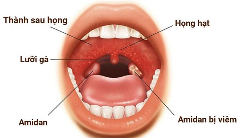 Viêm amidan là bệnh lý phổ biến hiện nay
