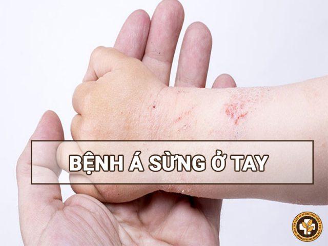 Bệnh á sừng bàn tay ngón tay