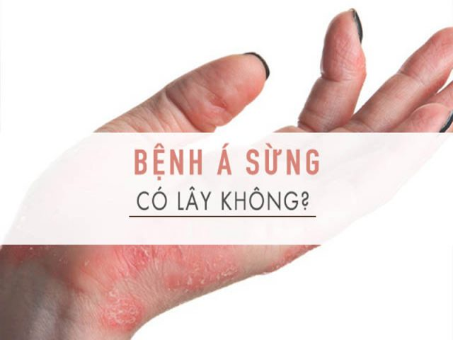 benh-a-sung-co-lay-khong 8
