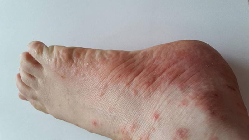Hình ảnh mụn nước ngứa ngáy ở chân