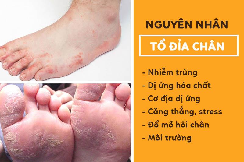 Những nguyên nhân có thể khiến chân bạn bị tổ đỉa