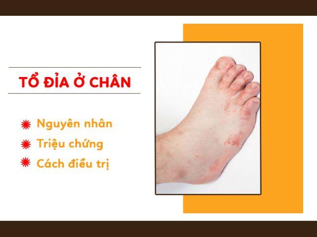 Bệnh tổ đỉa ở chân