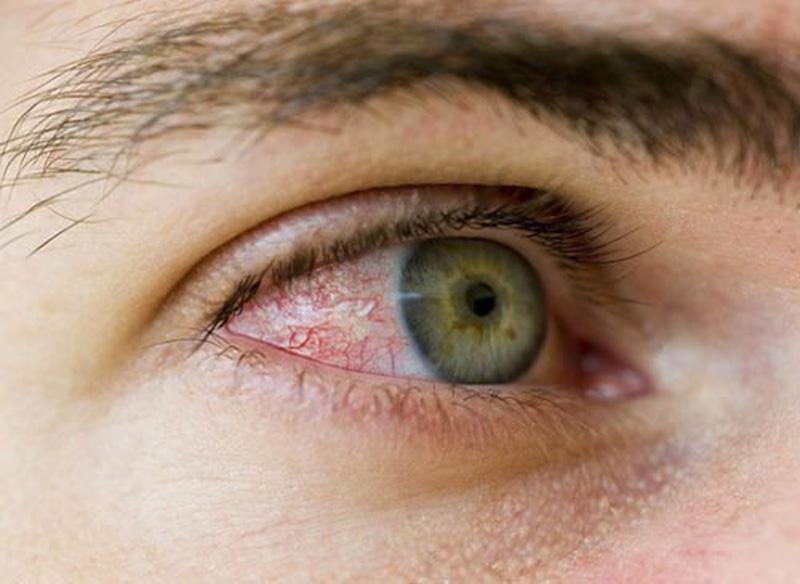 Viêm mắt là biến chứng thường gặp nhất của viêm xoang