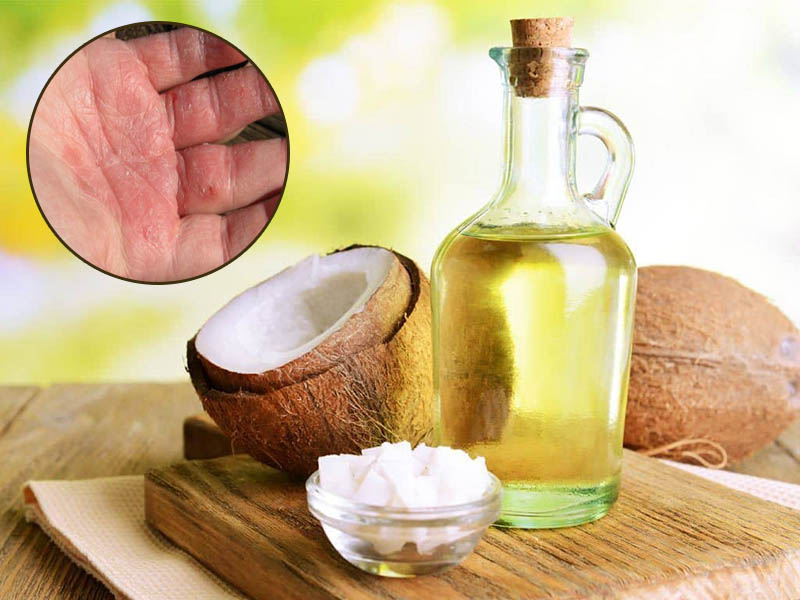 Chỉ nên sử dụng dầu dừa trong những trường hợp á sừng nhẹ