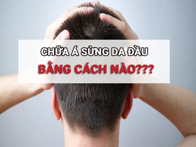 cach-chua-benh-a-sung-da-dau 8