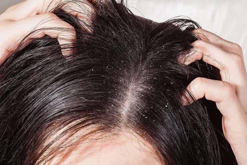 Cách chữa vảy nến da đầu tại nhà chỉ phù hợp với những trường hợp bệnh nhẹ