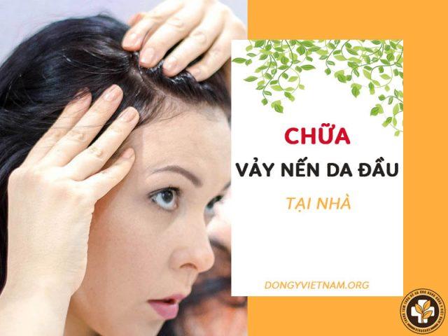 Cách chữa vảy nến da đầu tại nhà