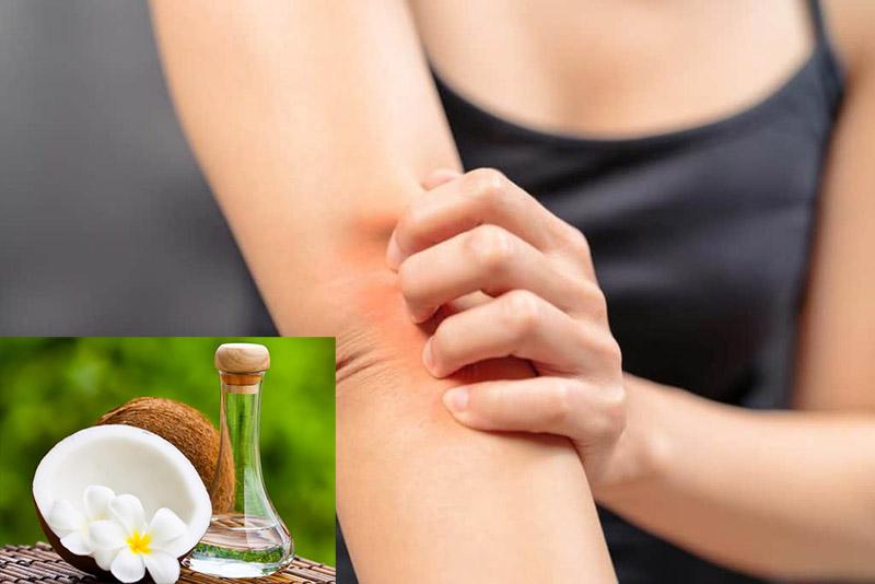 Người bệnh vảy nến có thể sử dụng dầu dừa hằng ngày để cải thiện triệu chứng