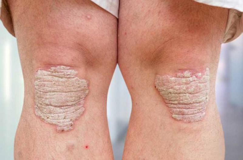 Hình ảnh bệnh vảy nến ở chân