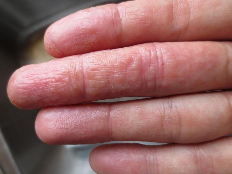 Người bệnh nên kết hợp sử dụng trầu không với kem dưỡng ẩm