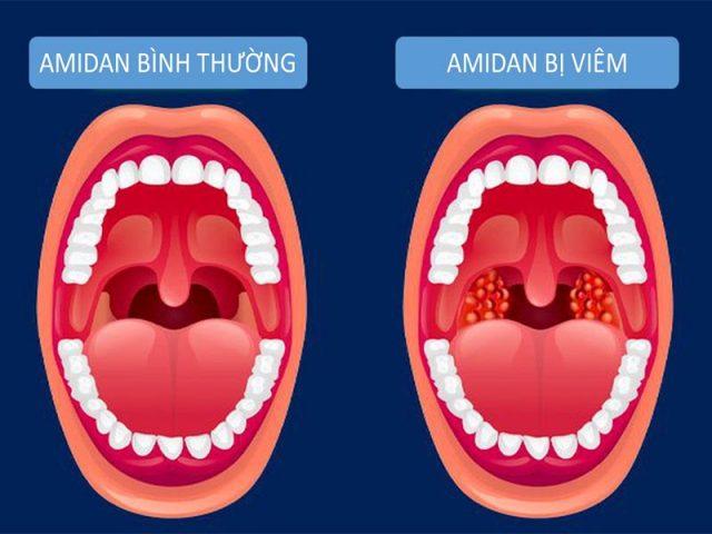 Hình ảnh amidan bình thường và amidan bị viêm
