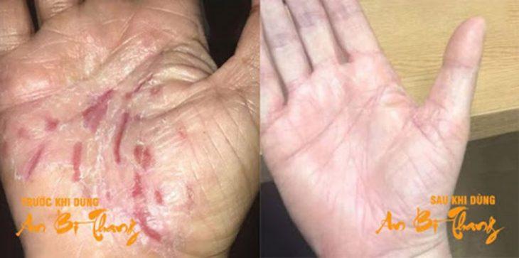 Bệnh nhân Vũ Huy Trung (34 tuổi) đã trị khỏi vảy nến ở tay sau 3 tháng sử dụng bài thuốc An Bì Thang