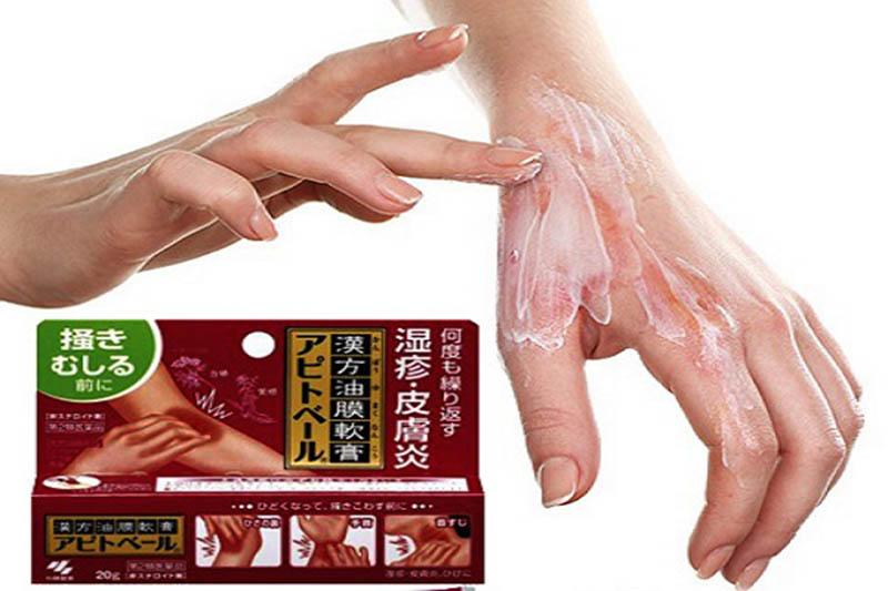 Thuốc trị tổ đỉa của Nhật Kobayashi Apitoberu khá an toàn và lành tính với da