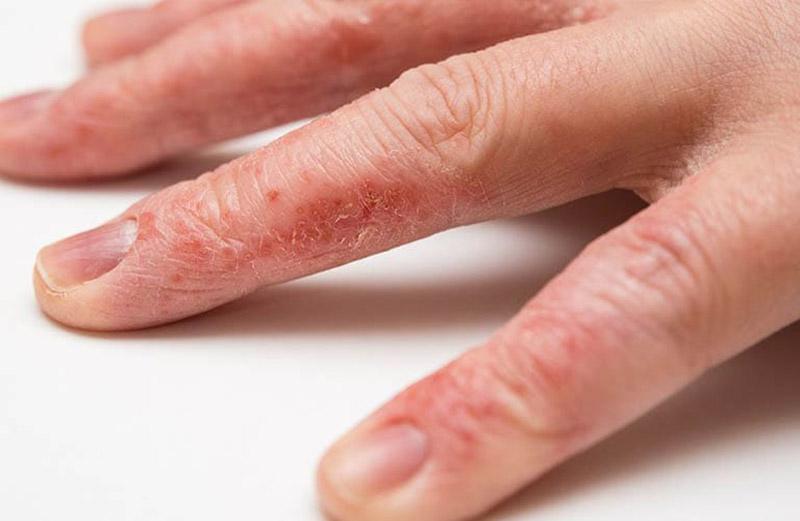 Tổ đỉa ở các rìa và kẽ ngón tay