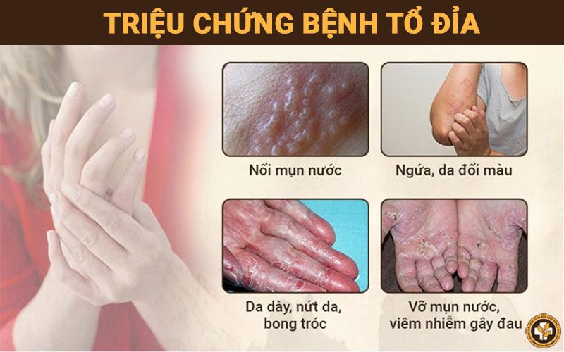 Những triệu chứng bệnh tổ đỉa thường gặp