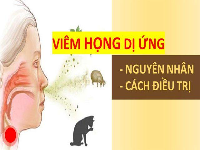 Viêm họng dị ứng