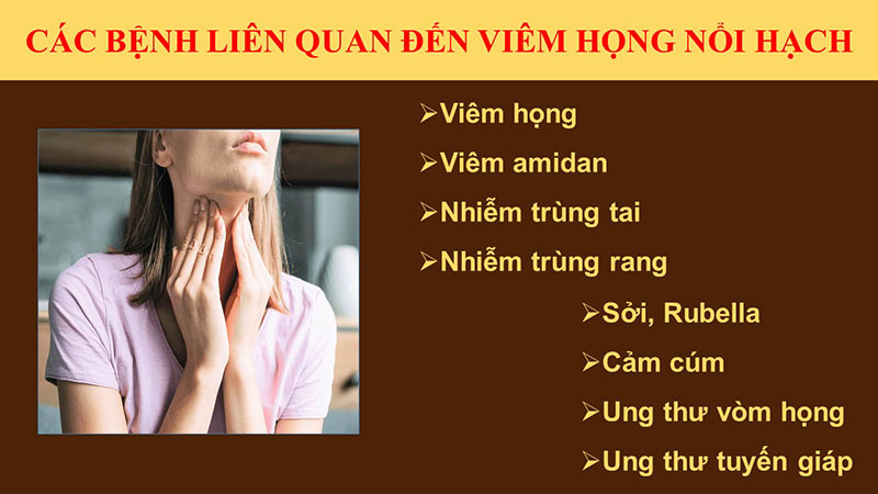 Viêm họng nổi hạch cảnh báo nhiều bệnh lý nguy hiểm