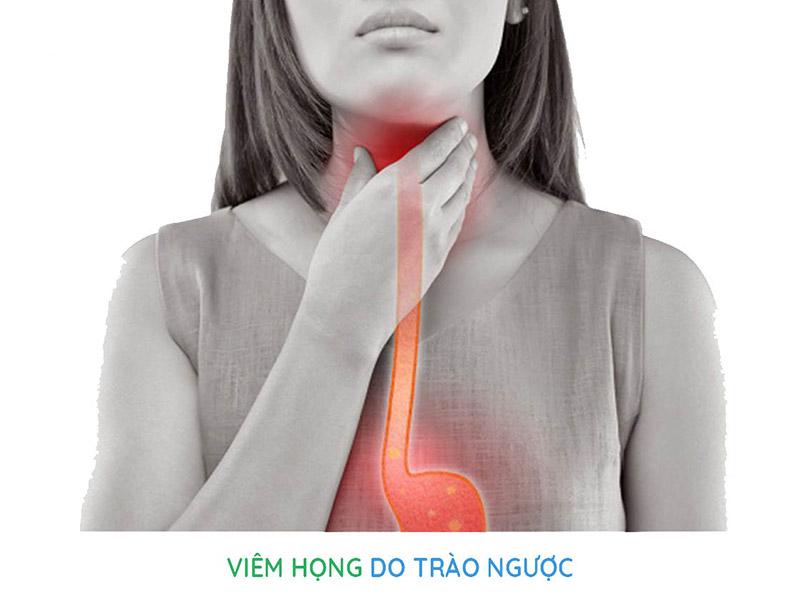 Viêm họng trào ngược dạ dày