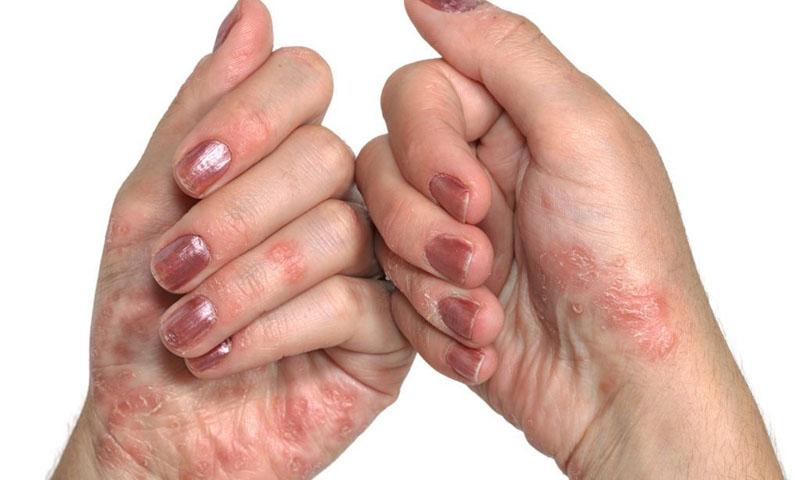 Á vảy nến là bệnh lý ngoài da thường gặp