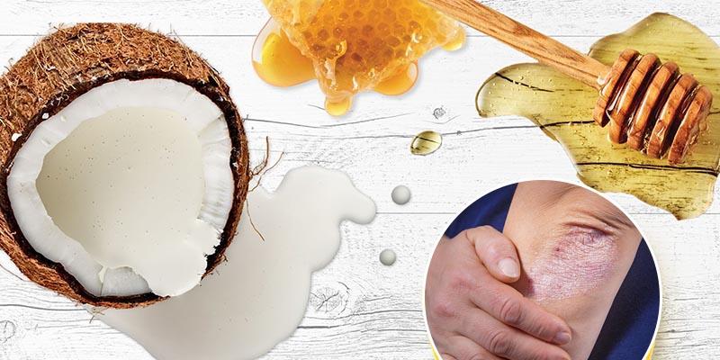 Mật ong có nhiều dưỡng chất giúp phục hồi làn da bị tổn thương do vảy nến