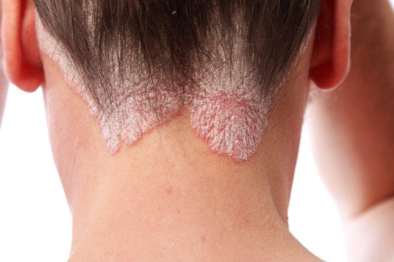 Hình ảnh tình trạng vảy nến da đầu