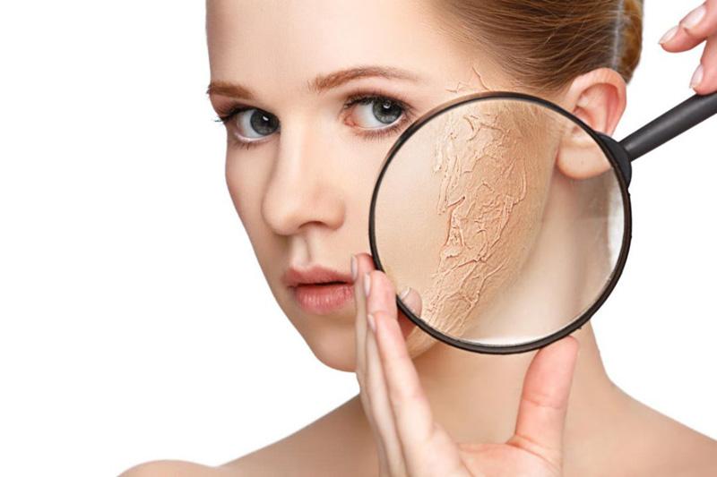 Kem trị vảy nến và tình trạng da khô