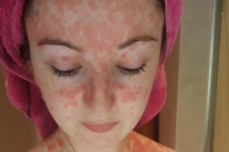 Vảy nến có thể xảy ra ở vùng da mặt, trán, cổ, tai, mí mắt...