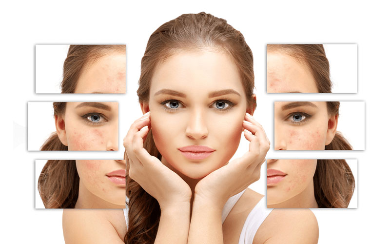 Vảy nến có thể xảy ra ở bất cứ vùng da nào trên mặt