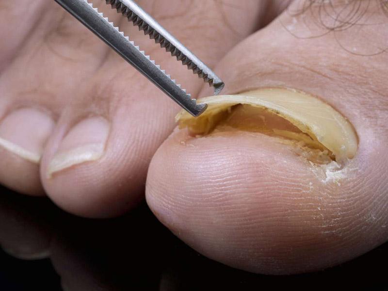 Vảy nến có thể gây tách (bong) móng tay, chân