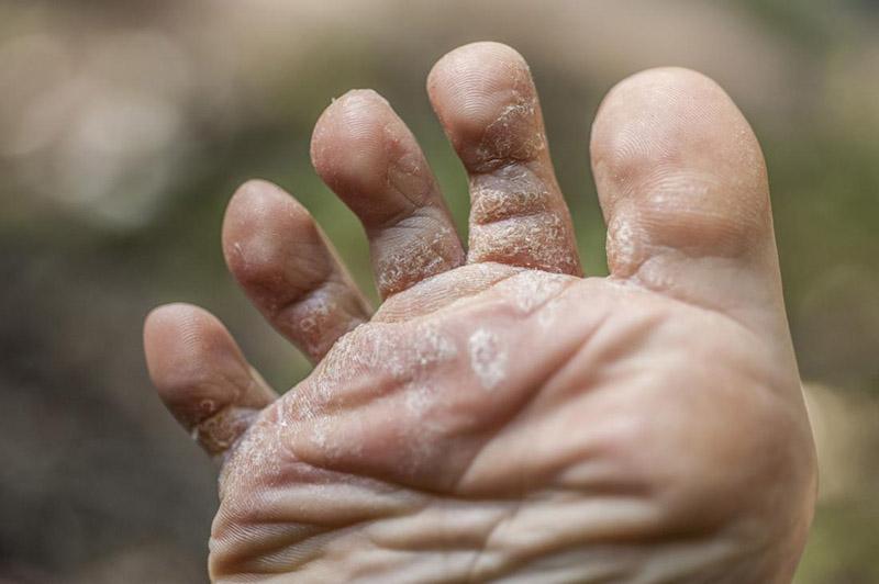 Vảy nến ở chân xuất hiện ở nhiều vị trí, bao gồm cả khớp các ngón chân