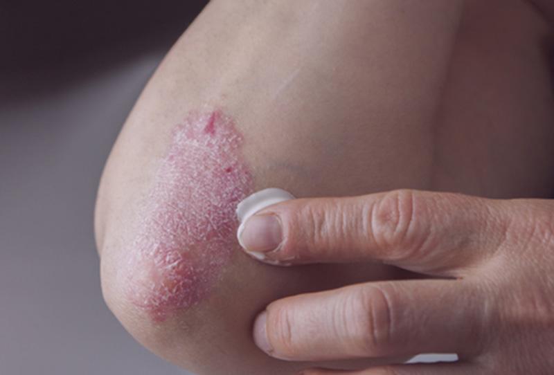 Sử dụng thuốc bôi để đều trị triệu chứng vảy nến thể mảng tại chỗ