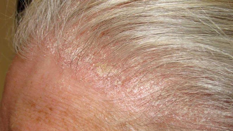 Vảy nến trên da đầu