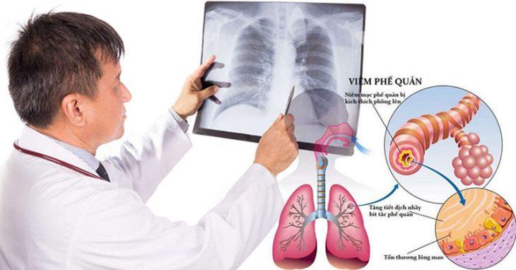 Bệnh gây phù nề lớp niêm mạc và tăng tiết dịch nhầy tại đường hô hấp