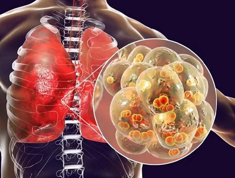 Viêm phế quản có nguy hiểm không? Bệnh có thể gây nhiều biến chứng nguy hiểm, đặc biệt là ở phổi