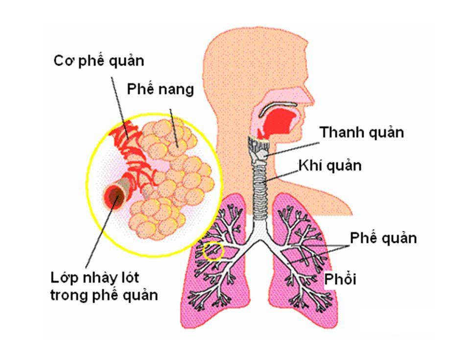 Viêm phế quản phổi là tình trạng viêm nhiễm xảy ra ở cả phế quản và phế nang trong phổi