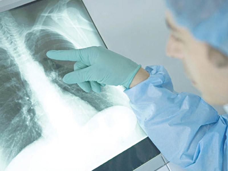 X quang phổi có giá trị cao trong chẩn đoán xác định bệnh